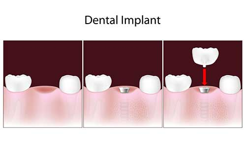 Implant Dentist in Midtown